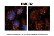 ARP58157_P050 - HMGB2 / HMG2