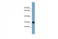ARP58158_P050 - HMGB2 / HMG2