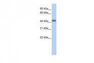 ARP58409_P050 - CD192 / CCR2