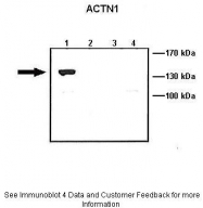 ARP58413_P050 - Alpha-actinin-1 / ACTN1