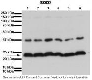ARP58529_P050 - Superoxide dismutase 2 / SOD2