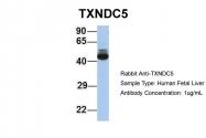 ARP58547_P050 - TXNDC5 / TLP46