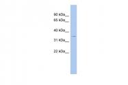 ARP58734_P050 - Thrombopoietin