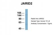 ARP58842_P050 - JARID2 / Jumonji