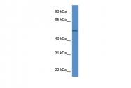 ARP58861_P050 - Arylsulfatase B
