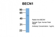 ARP58874_P050 - Beclin-1