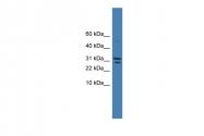 ARP59165_P050 - SPINT2 / HAI2