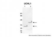 ARP59285_P050 - UCHL1 / PGP9.5
