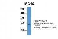 ARP59386_P050 - ISG15 / G1P2