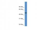 ARP59463_P050 - Neuronal pentraxin-1