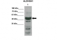 ARP59748_P050 - ALDH3