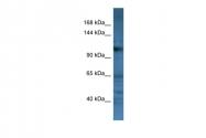 ARP59862_P050 - CD22