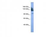 ARP59939_P050 - CD56