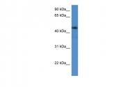 ARP59953_P050 - Adenosine receptor A2a