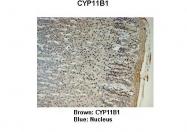 ARP60140_P050 - CYP11B1