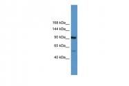 ARP60281_P050 - Apolipoprotein(a) / LP(a)