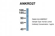 ARP60395_P050 - ANKRD27
