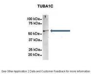 ARP60614_P050 - TUBA8 / TUBAL2
