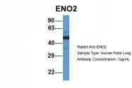 ARP60777_P050 - Neuron specific enolase