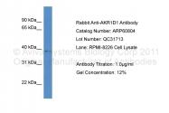 ARP60804_P050 - AKR1D1 / SRD5B1