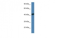 ARP60969_P050 - alpha skeletal muscle Actin / ACTA1