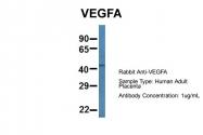 ARP60981_P050 - VEGF-A