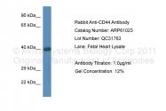 ARP61023_P050 - CD44