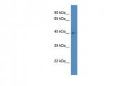 ARP61039_P050 - Aspartylglucosaminidase / AGA
