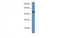 ARP61099_P050 - Vinculin (VCL)