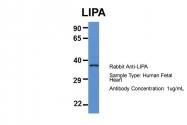 ARP61109_P050 - LIPA
