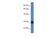 ARP61136_P050 - Cathepsin G