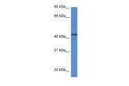 ARP61286_P050 - D-aspartate oxidase