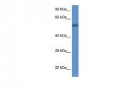 ARP61322_P050 - Glucosylceramidase