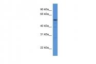 ARP61337_P050 - Histidyl-tRNA synthetase / HARS