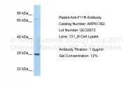 ARP61362_P050 - CD321 / JAM1