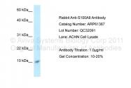 ARP61367_P050 - S100A8 / Calgranulin-A / MRP8