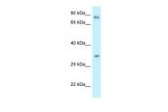 ARP61636_P050 - Calumenin
