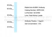 ARP61830_P050 - ALKBH1