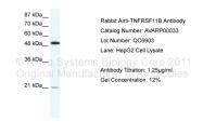 AVARP00033_T100 - Osteoprotegerin / TNFRSF11B