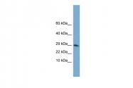AVARP01011_P050 - Histone H3.3