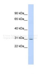 AVARP01037_P050 - NFKBIA / IKBA