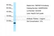 AVARP02052_P050 - TNFRSF18 / GITR