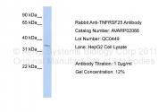 AVARP02066_P050 - TNFRSF25 / DR3 / TRAMP
