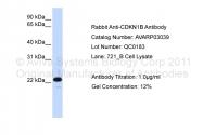 AVARP03039_P050 - CDKN1B / KIP1