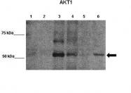 AVARP06008_P050 - AKT1 / PKB