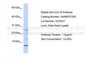 AVARP07005_P050 - NCC4 / CCL16
