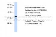 AVARP09044_P050 - NFKBIA / IKBA