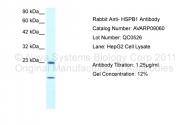 AVARP09060_T100 - HSPB1 / HSP27