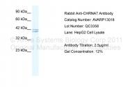 AVARP13018_T100 - Neuronal acetylcholine receptor subunit alpha-7
