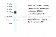AVARP13020_P050 - Neuronal acetylcholine receptor subunit beta-2